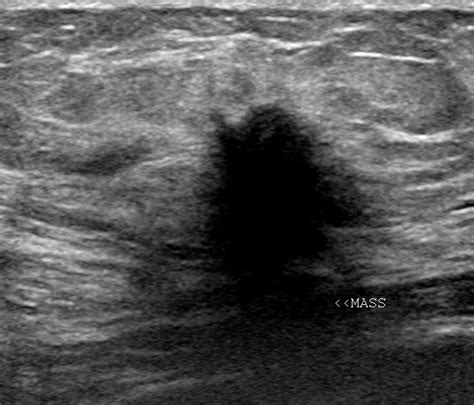 Breast Ultrasound Images Ultrasound Imaging Breast Cancer With Spread To Lymph Nodes