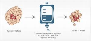 Chemotherapy - Virtual Medical Centre  Chemotherapy Cancer