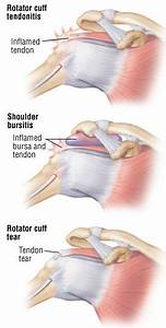 Rotator Cuff Injury Guide  Causes  Symptoms And Treatment