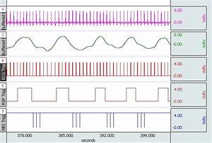 Physiological Data Acquisition In An Mri
