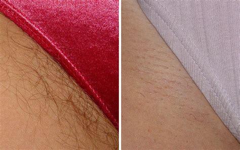 black hair removal bikini  porn archive
