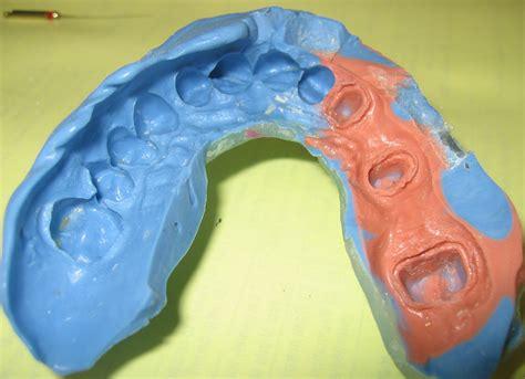 Dental Imprint 5unitimp.jpg