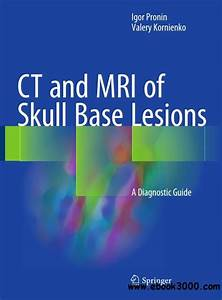 Ct And Mri Of Skull Base Lesions  A Diagnostic Guide