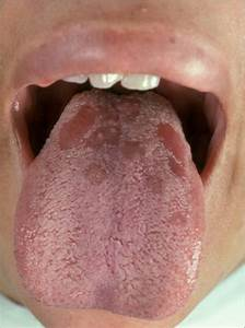 Primary Syphilis Symptoms for Pinterest Syphilis - primary