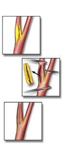 endarterectomy wikipedia