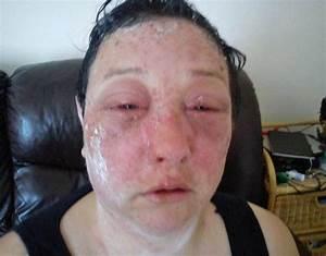Horror Hair Dye Allergic Reaction Leaves Woman39s Life In