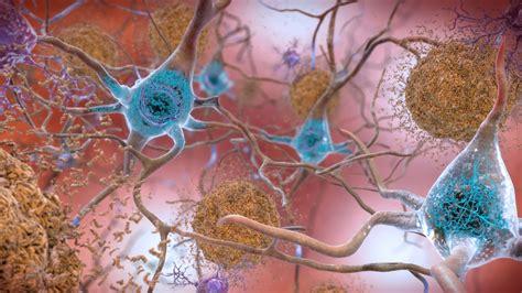 beta amyloid plaques  tau   brain