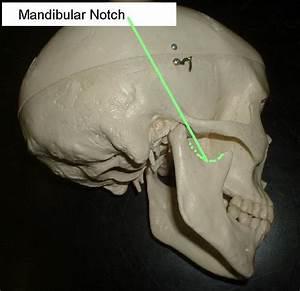 Image Gallery Mandibular Notch
