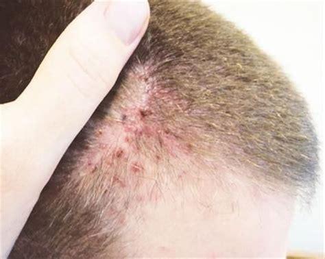 dermite du si鑒e dermite séborrhéique seborrheic dermatitis galerie photo photo gallery