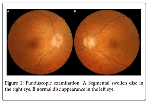Clinical-experimental-ophthalmology-funduscopic-examination