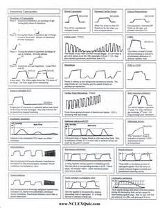 Capnography Cheat Sheet