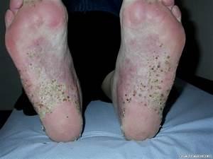 palmar plantar psoriasis cure
