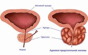 Пихтовое лечение простатита