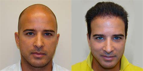 Aldo's Ridiculous 5 Month Transformation - World Famous ...