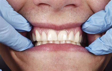 siege social allianz moonz on farm cosmetic dentistry 100 images clinton