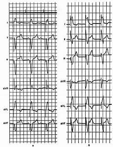 Может ли от остеохондроза быть нарушение ритма сердца