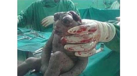 si鑒e crapaud donne naissance a un bébé crapaud abidjantv
