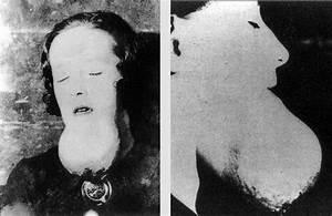 How  U0026 39 The Radium Girls U0026 39  Left A Legacy Of Scientific And