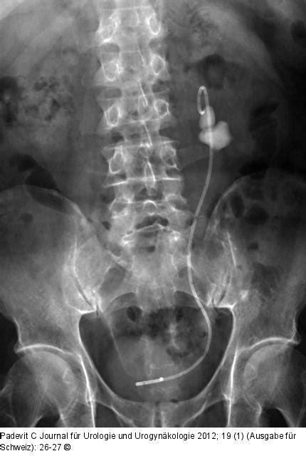 abbildung  abdomen