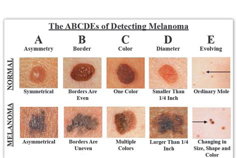 Skin Cancer, Symptoms, Types, Treatment, Causes  Health Tips. Tmobile Mobile Security Little Rock Attorneys. Remote Infrastructure Services. American College Of Healthcare Executives. Advanced Dentistry Las Vegas. Samsung Dishwasher Repair Service. Fort Lauderdale Funeral Homes. Abc Tuesday Night Schedule 2nd Dui California. Vasectomy Reversal North Carolina