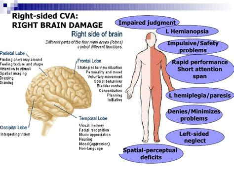 Right Hemisphere Stroke  Milka Clarke Stroke Brain Trauma. Road Work Signs. Food Preparation Signs Of Stroke. Feeling Sad Signs Of Stroke. Light Case Signs. Cracked Signs. Airfield Signs Of Stroke. One Handed Signs. Possible Signs