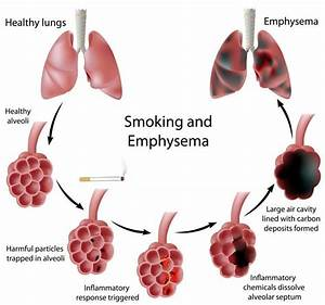 What Is Copd  An Overview Of Copd Myheart