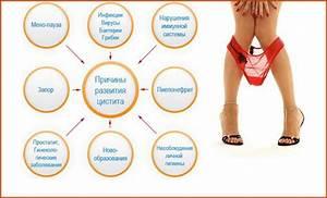 Папиллома мочевого пузыря у женщин лечение