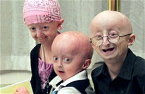 Progeria  My Doctor Diets
