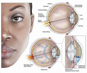 Glaucoma : Anatomy, Definition, Causes, Symptoms, Diagnosis and ...  Glaucoma Eyes and Vision