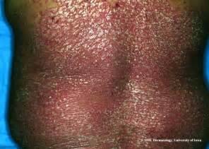 Psoriasis Rash On Back