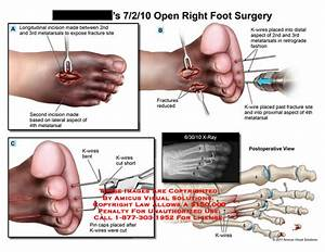 Amicus Illustration Of Amicus Surgery Foot Open