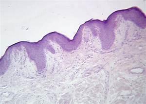 Skin Receptors  Meissner U0026 39 S Corpuscle
