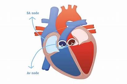 Herz Anatomie Eu Bostonscientific Bildergalerie