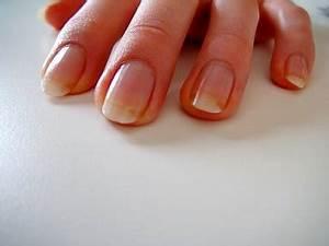 Грибок ногтей на руках кандид