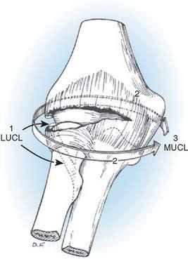 Elbow Dislocations | Musculoskeletal Key