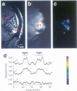 Intrinsic Signal Changes In Sagittal