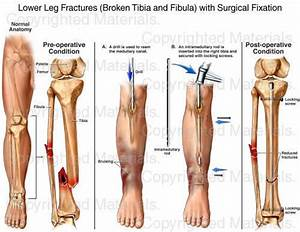 Lower Leg Fractures (Broken Tibia and Fibula) with ...