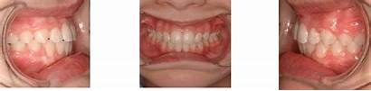 Malocclusion Class Before Bite Deep Herbst Ii