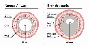 Understanding And Managing Bronchiectasis
