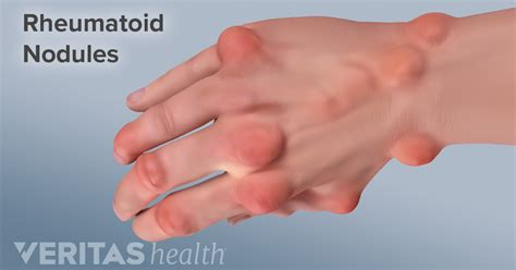 Rheumatoid Arthritis Symptoms  Arthritishealth. Best Commercial Cleaning Franchise. Electricians New York City Keffer Auto Group. Human Services Bachelor Degree. Electrical Drafting Services. Klm Royal Dutch Airlines Cargo Tracking. Professional Dissertation Editors. How To Start Your Own Tutoring Business. Nursing Schools In Arizona No Waiting List