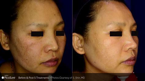 dark spot treatment lake medical spa skin care center