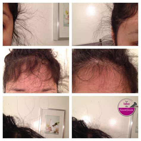 une cure de vitamine pour cheveux msm spiruline