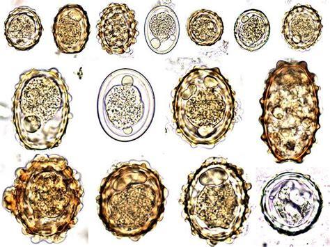 Ascaris Lumbricoides Egg