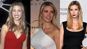Ivanka Trump Plastic Surgery Before and After Pictures 2018