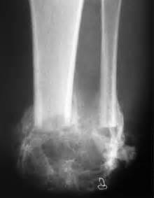Heterotopic Ossification In Victims Of The London 7  7