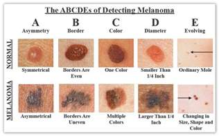 Tanning Bed Dangers by Skin Cancers New Orleans Skin Cancers New Orleans La
