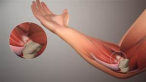 Treatment For Tennis Elbow And Golfer U2019s Elbow  U2013 Wellbeing Physiotherapy  Massage And