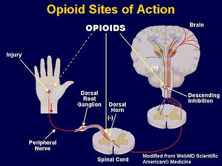 opioid analgesia practical treatment   patient