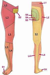Dermatomes of the lower limb | uni - medicine | Pinterest ...