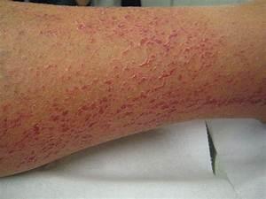 droge huid winter
